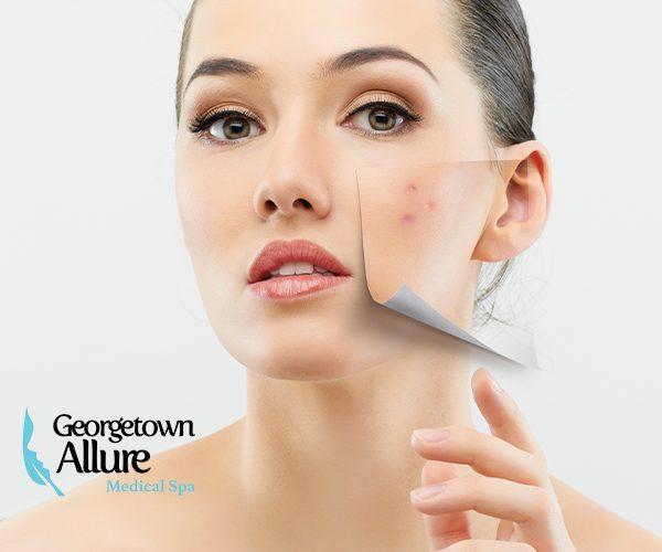acne facial treatment