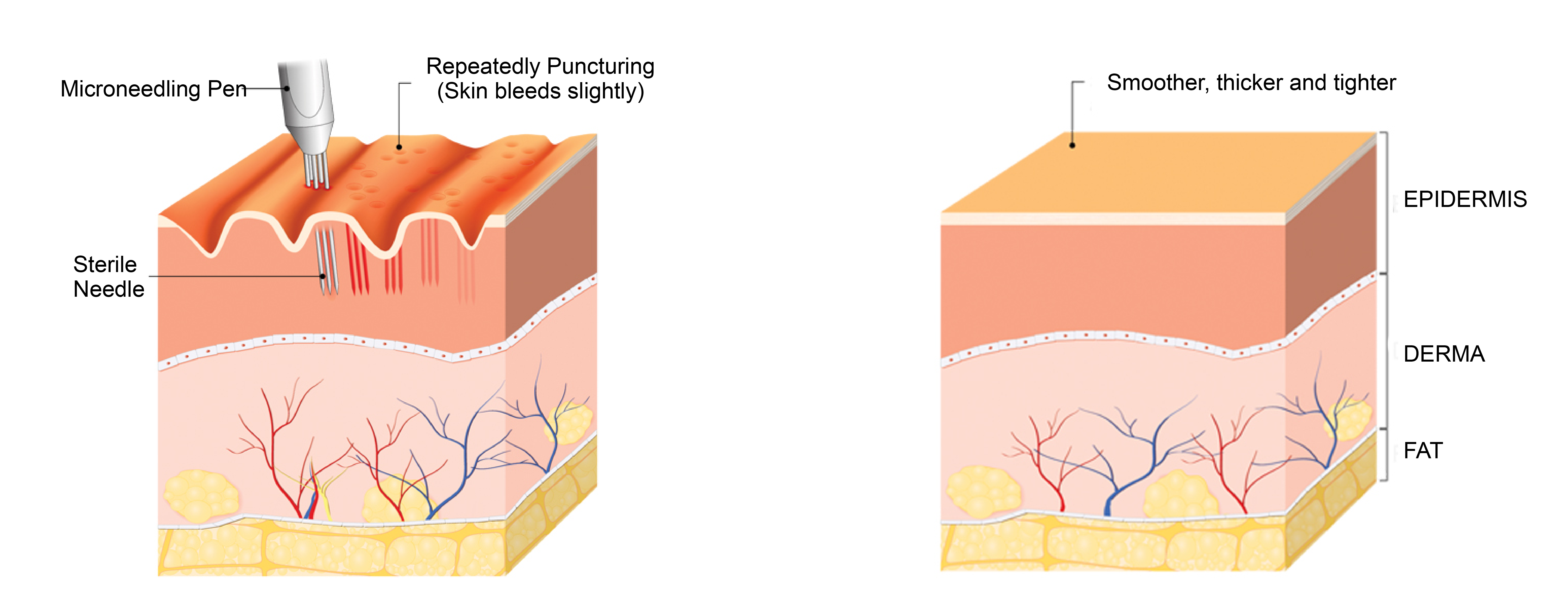 Microneedling Facial with Hyaluronic Acid